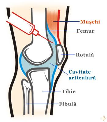 Simptome de acumulare a fluidului in tratamentul articula?iei genunchiului