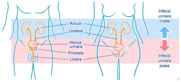 e coli si prostata