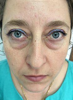 Operatie pleoape cazute blefaroplastie pret