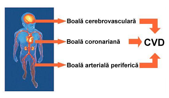 ateroscleroza forme clinice