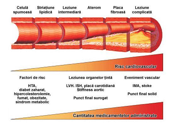 ateroscleroza proces evolutie
