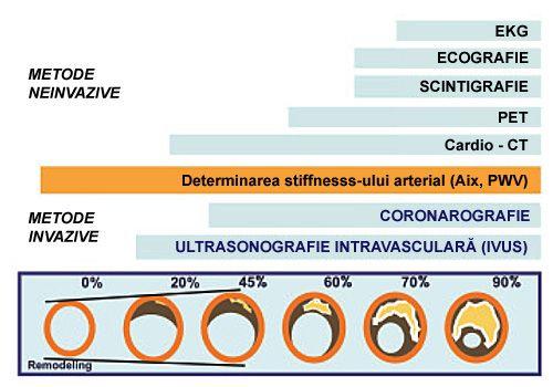 metode neinvazive determinare ateroscleroza