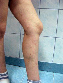 tratamentul varicose vaama numele gelurilor din varicoză