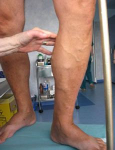 varicose foot reviews simptome tratament