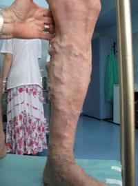 poze cu varicoză tratament)